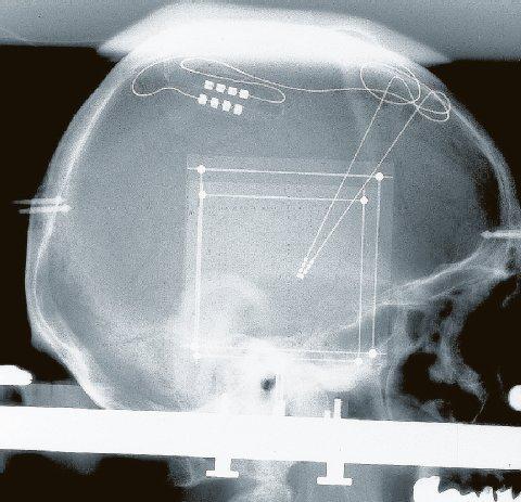 Röntgenbild der Stimulationsanordnung